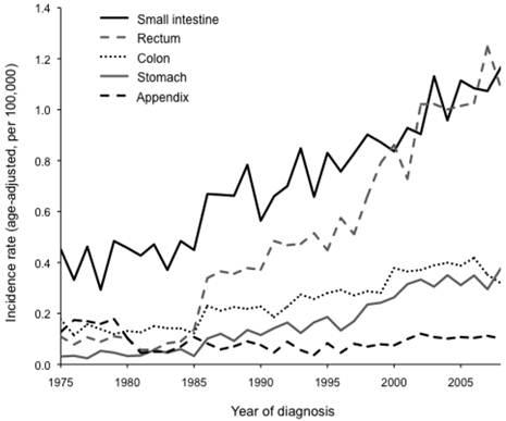 neuroendocrine cancer rate)