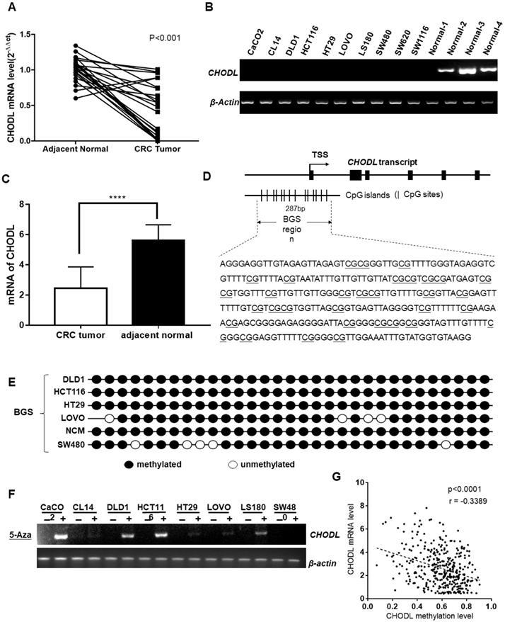 Promoter Hypermethylation of CHODL Contributes to